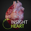 INSIGHT HEART Review iOS